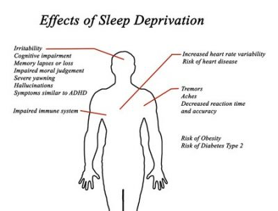 Sleep Deprivation Slows Your Performance