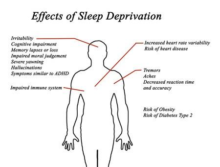 Sleep Deprivation Slows Your Performance